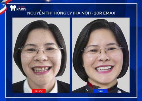 thời gian bọc răng sứ cho răng khấp khểnh