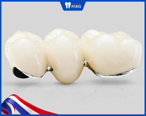 Bọc răng sứ cho răng bị hô vẩu bằng mão kim loại