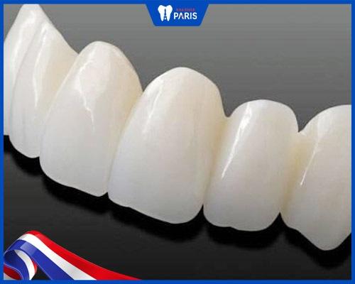 Bọc răng sứ cho răng bị hô vẩu bằng mão toàn sứ