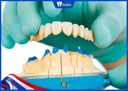bọc răng sứ có tháo ra được không