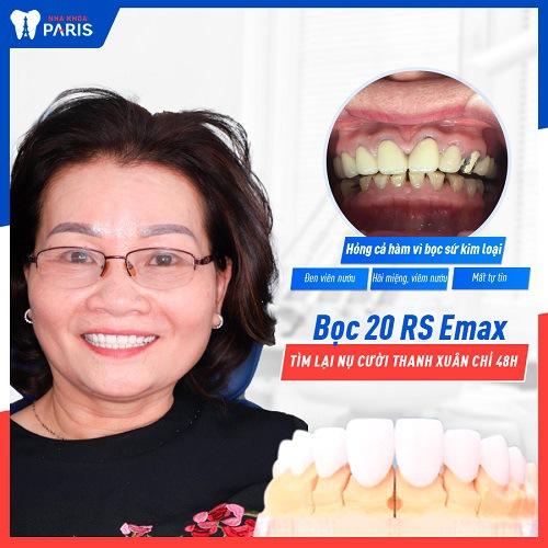 khách hàng làm răng sứ lần 2