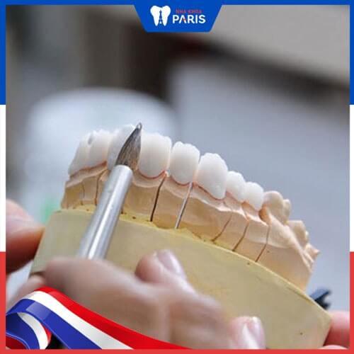 Bọc răng sứ nhai bị cộm