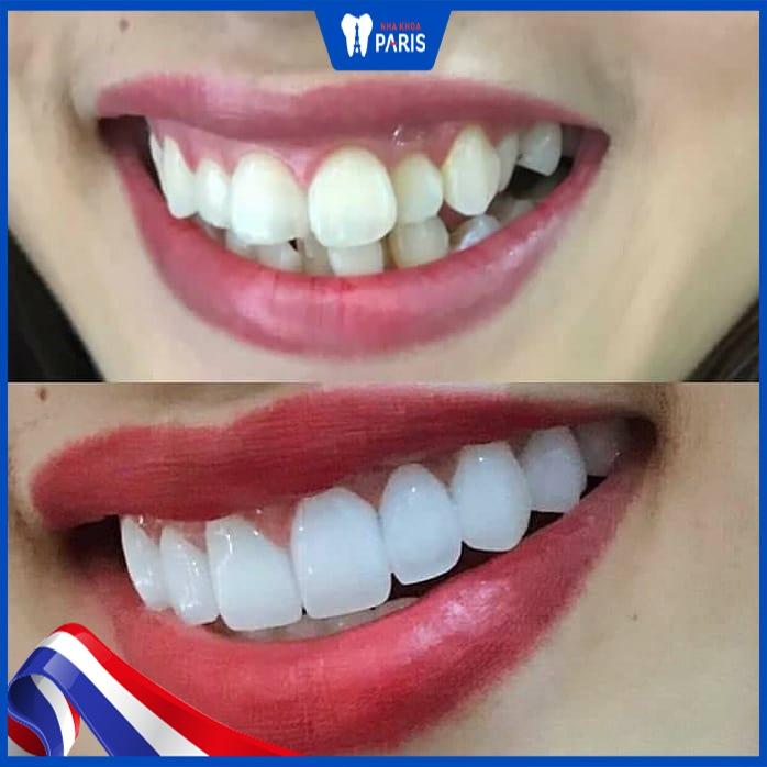 bọc sứ răng khểnh
