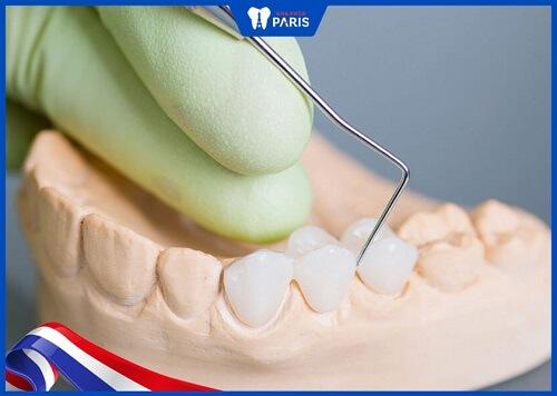 cách tháo răng sứ