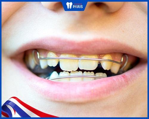 đeo niềng điều trị răng cửa mọc lệch cho trẻ em