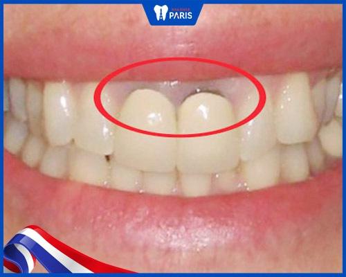 Răng sứ kim loại có thể gây viêm nướu, đen nướu