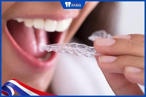 chăm sóc răng sứ như thế nào
