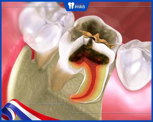 Điều trị viêm tủy trước khi bọc sứ để không gây hại cho răng