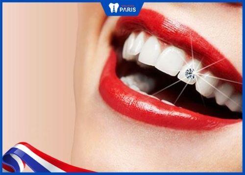 đính đá răng