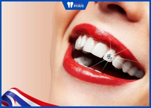đính đá răng có hại không