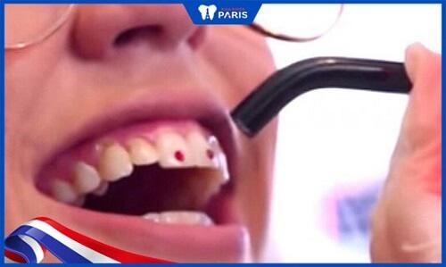 đính đá răng nam khác gì so với nữ