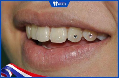 Kết quả đính 2 đá kim cương vào răng tại nha khoa Paris