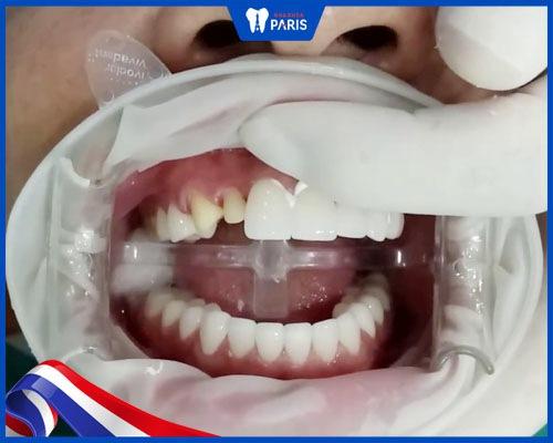 Gắn cố định mão sứ và điều chỉnh hô vẩu hàm răng