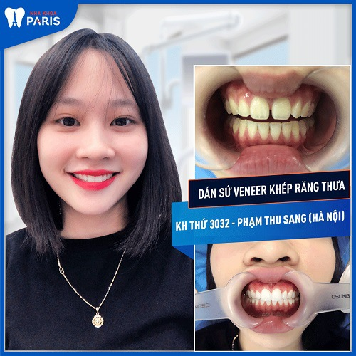 chi phí dán răng sứ tại nha khoa paris