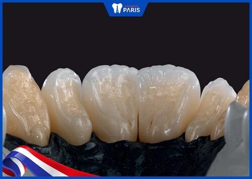 răng sứ ceramill zolid giá bao nhiêu