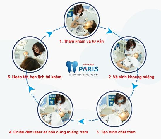 Quy trình hàn răng cho bé