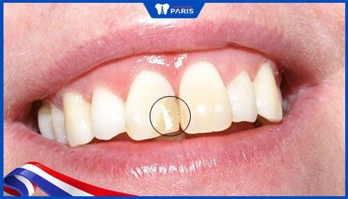 răng bị đen gây mất thẩm mỹ