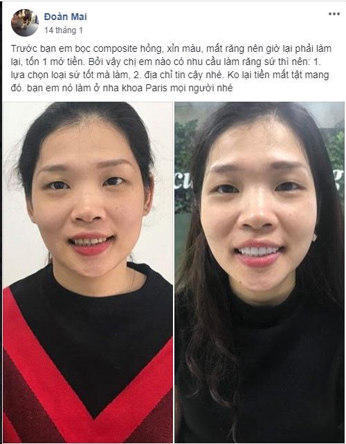 Bọc răng sứ giá rẻ Hà nội