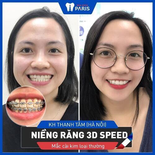 Kết quả niềng răng cửa bằng công nghệ 3D Speed tại nha khoa Paris