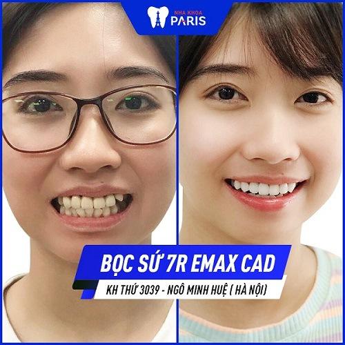 Khách Hàng Minh Huệ khắc phục răng sứ hỏng bằng sứ Emax
