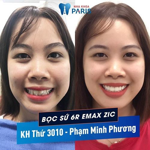 Bạn Minh Phương cải thiện răng miệng tại nha khoa Paris