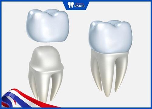 thay thế răng sứ bị cộm