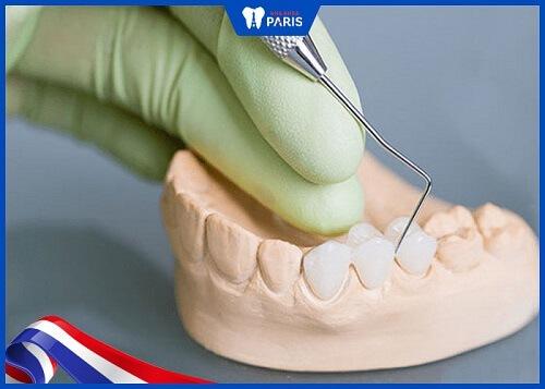 khắc phục răng sứ bị cộm
