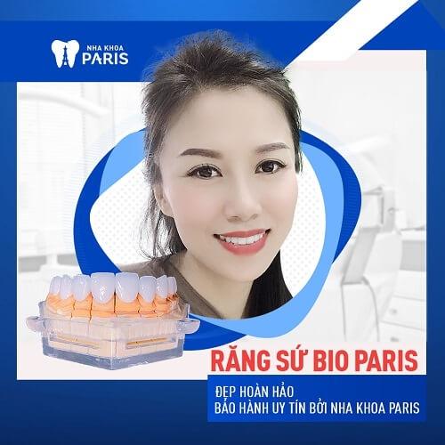 khách hàng dán răng sứ veneer tại nha khoa paris