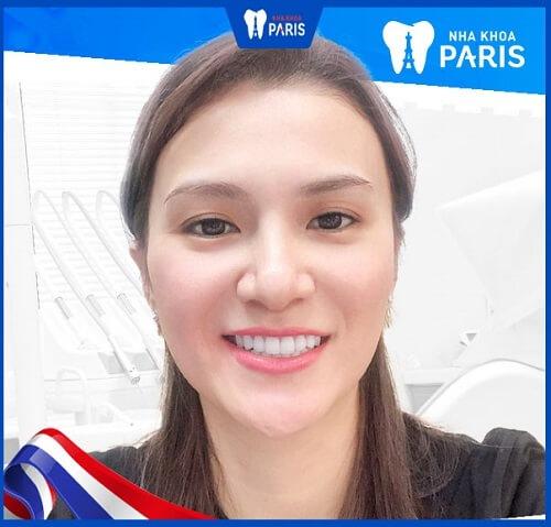 kết quả tẩy tắng răng nhanh chóng tại paris