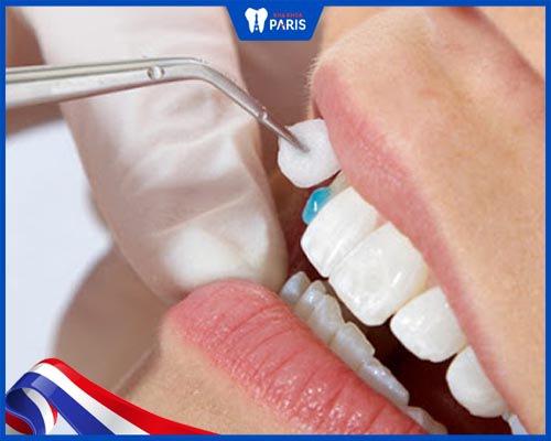 dán veneer cho răng