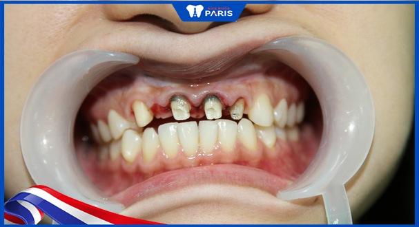 tác hại khi bọc răng sứ bị viêm lợi