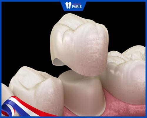 Kỹ thuật lắp răng sứ kém