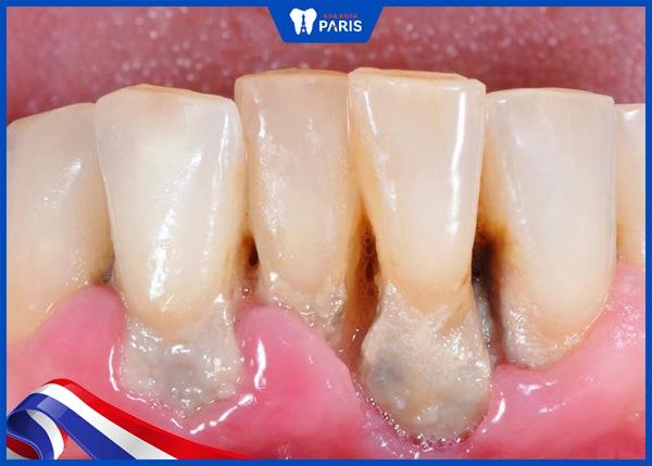 Vôi răng dưới Nướu: Nguyên nhân & Cách điều trị dứt điểm