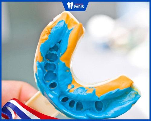 Bước lấy dấu răng trong quy trình bọc sứ điều trị răng hô vẩu