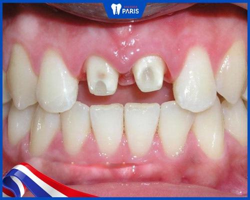 Bọc sứ kim loại cần phải mài nhiều răng