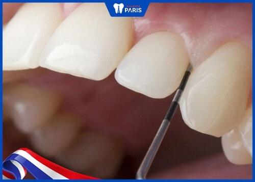 răng sứ bị cộm