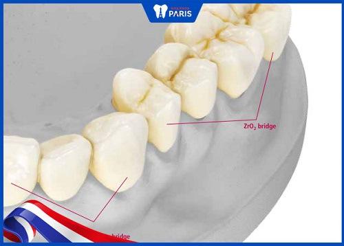 răng sứ emax là gì