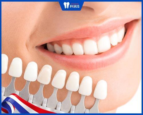 dán răng sứ veneers