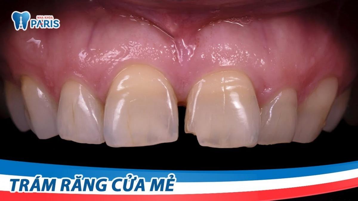 TRám răng cửa bị mẻ góc như thế nào