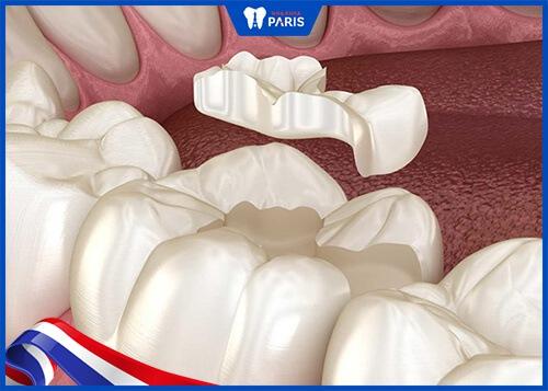 mẻ răng có điềm gì