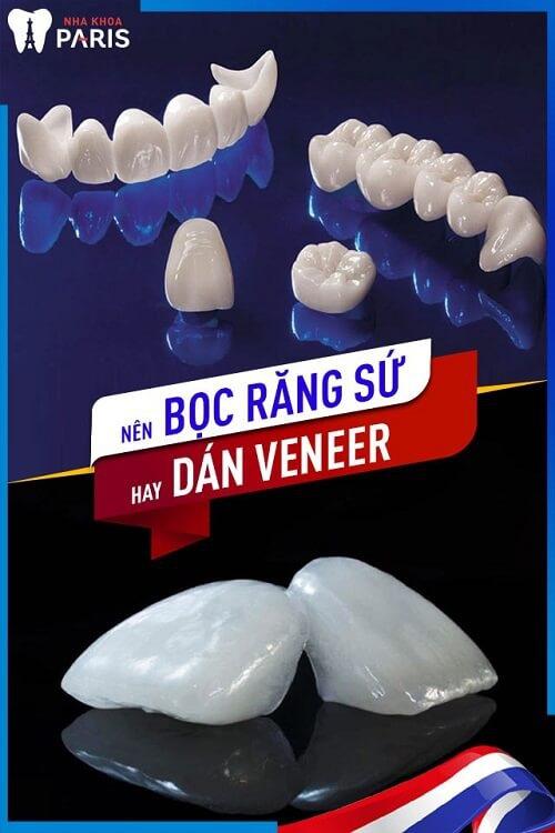 nên bọc răng sứ hay dán veneer