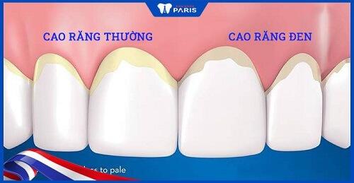 mảng bám đen trên răng