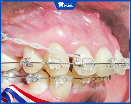 Răng vẩu nặng nên thực hiện niềng răng