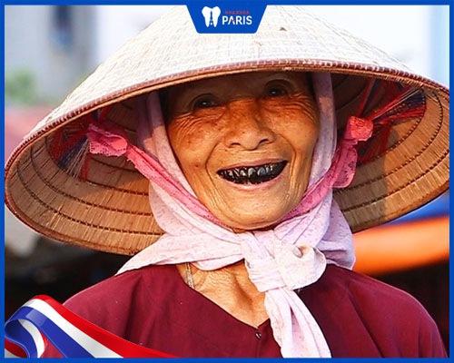 Tục nhuộm răng đen của người Việt dần không còn phù hợp