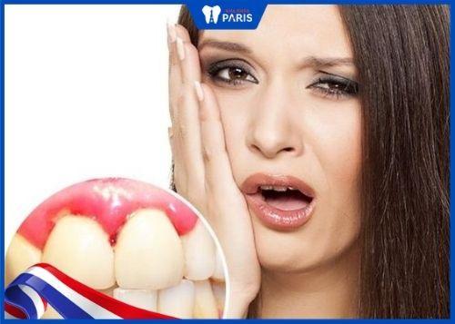 phụ nữ mang thai bị chảy máu chân răng