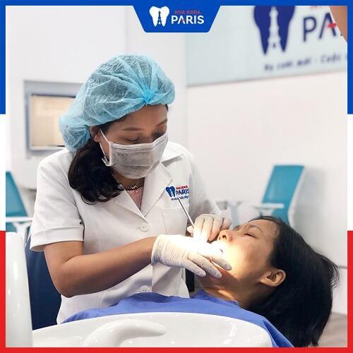quy trình trám răng khôn