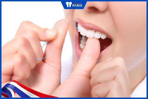 dùng chỉ nha khoa hạn chế răng đen ở kẽ