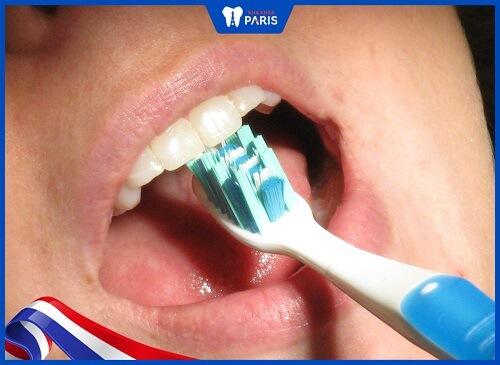răng bị đen phía trong do khó vệ sinh