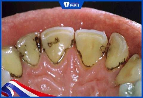 chấm đen trên răng ở mặt trong
