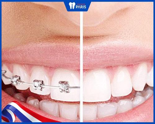Bọc răng sứ giúp rút ngắn thời gian điều trị hô vẩu